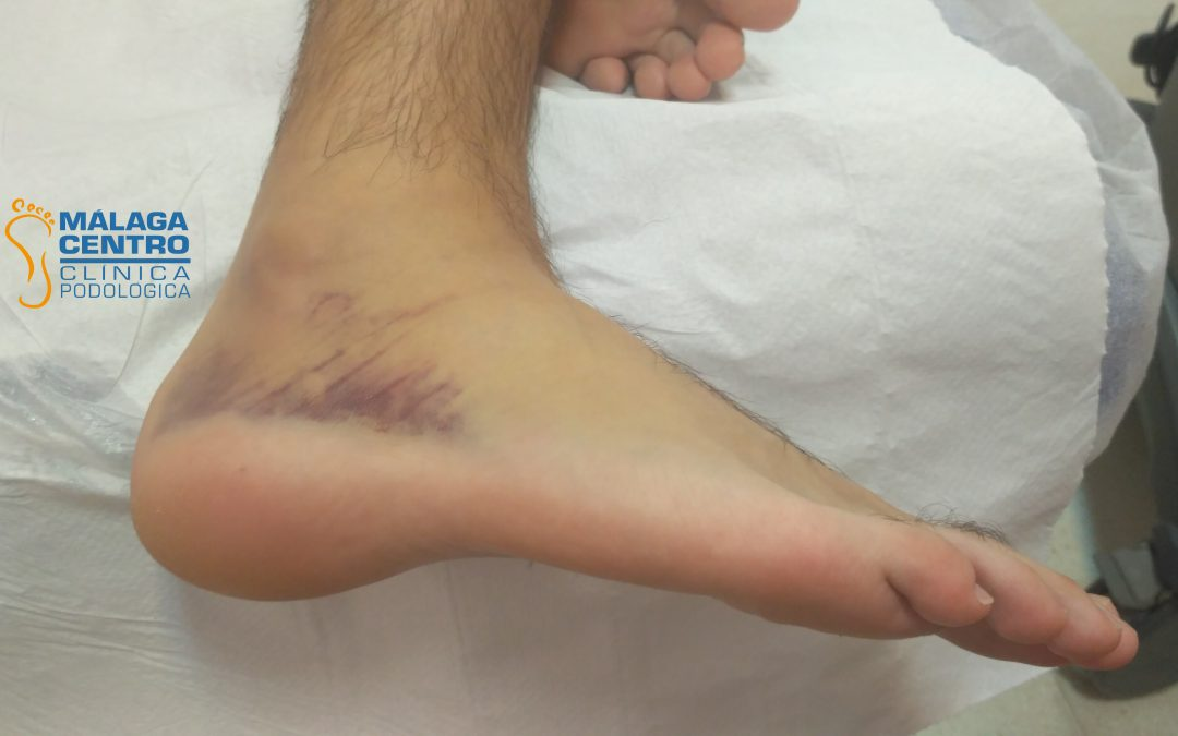Esguince de tobillo: Casos reales de nuestra clínica de podología y fisioterapia en Málaga