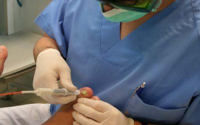 Los tratamientos Láser para los hongos en las uñas (onicomicosis)